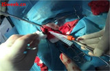 一种用于膀胱内压监测的光纤压力传感器FOP-M260