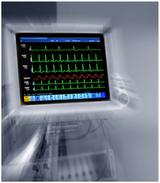 设计出高安全性高可靠性的产品,迎接自动体外除颤器市场