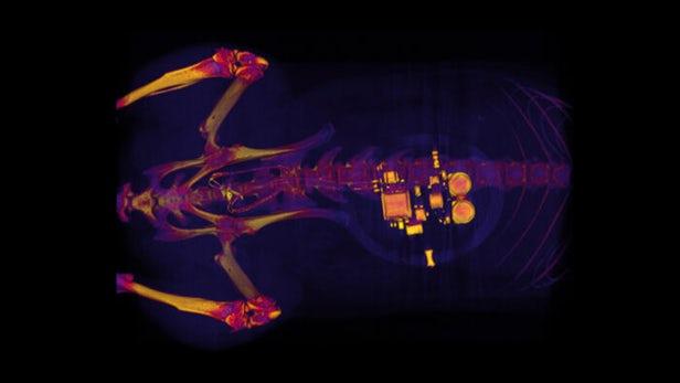 无线激活的植入物使用光来治疗膀胱问题