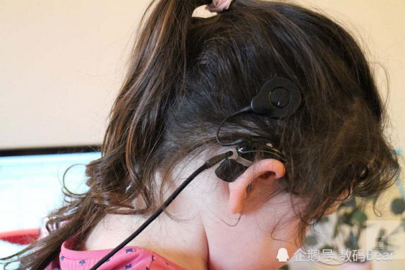 人工智能植入智能耳蜗 失聪儿童借助科技的力量回归正常生活