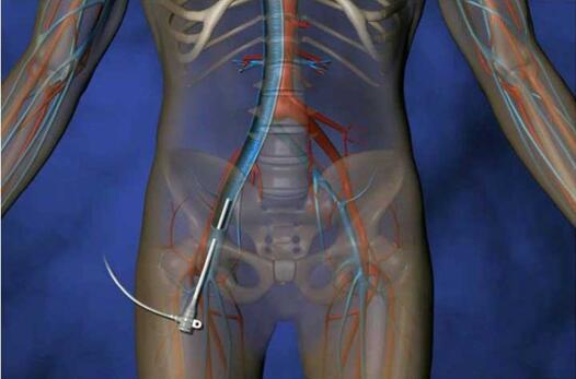 CardioMEMS心衰监测传感器有效降低住院率