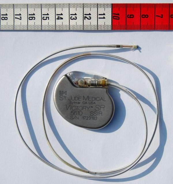可植入电子仪器又有神操作!无需电池自驱动心脏起搏器问世