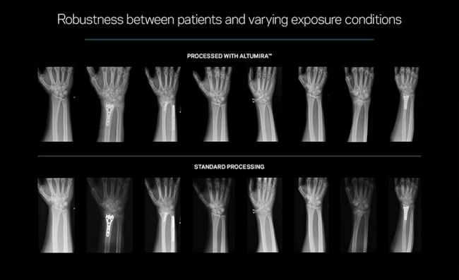 康泰瑞影将在CMEF 2019上展出由AI驱动的数字放射成像的影像增强方案Altumira™