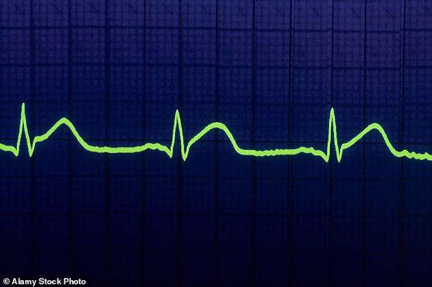 新型激光技术居然能靠读取心跳识别出身份?