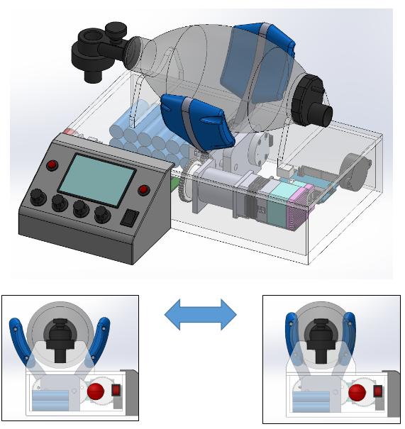 MPS联合MIT开发开源自动面罩呼吸机